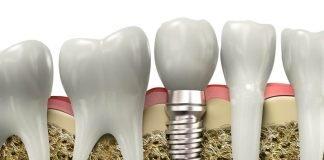 técnica que faz crescer os dentes