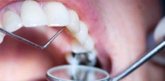 Restaurar os dentes