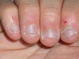 rói as unhas