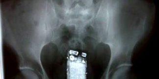 Preso escondeu telemóvel no traseiro