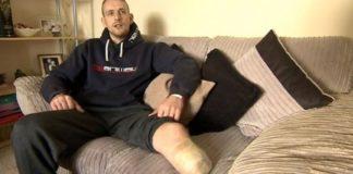 Homem realiza amputação da perna esquerda